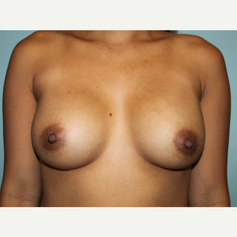 25-34 year old woman treated with Breast Augmentation after 3629988