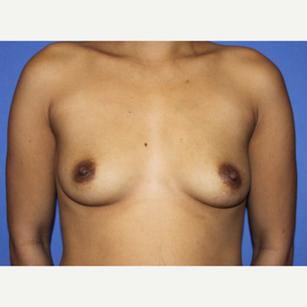 25-34 year old woman treated with Breast Augmentation before 3629988
