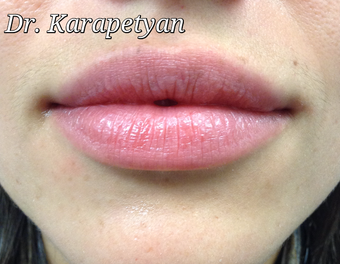 Lip aumentation after 3594196