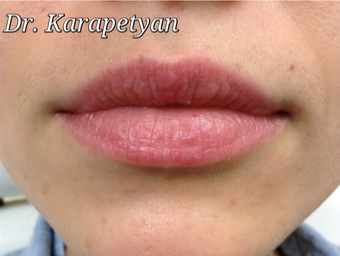 Lip aumentation before 3594196