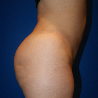 25-34 year old woman treated with Brazilian Butt Lift, Fat Grafting, Liposuction after 3125845