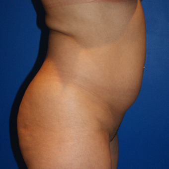 25-34 year old woman treated with Brazilian Butt Lift, Fat Grafting, Liposuction before 3125845