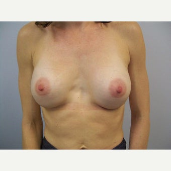 35 year old female desired to have larger more symmetrical breasts. after 2267064