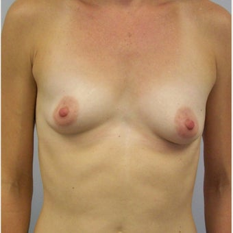 35 year old female desired to have larger more symmetrical breasts. before 2267064