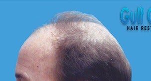 65-74 year old man treated with Hair Loss Treatment before 3032966