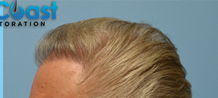 65-74 year old man treated with Hair Loss Treatment after 3032966