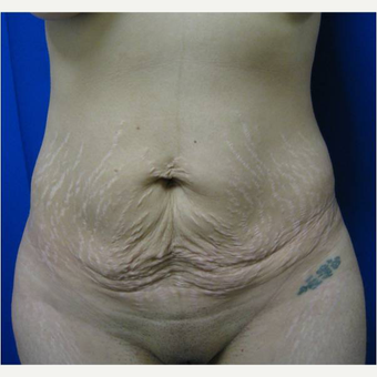 30 year old woman treated with Tummy Tuck before 3726596