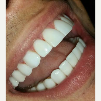 35-44 year old man treated with Zoom Whitening after 3295058
