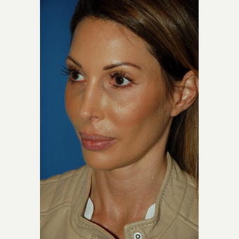 35-44 year old woman treated with Revision Rhinoplasty before 3288673