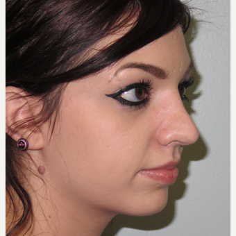 18-24 year old woman treated with Rhinoplasty after 3617184