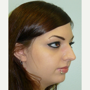 18-24 year old woman treated with Rhinoplasty before 3617184