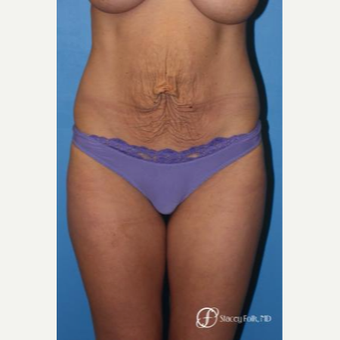 25-34 year old woman treated with Tummy Tuck before 2976877