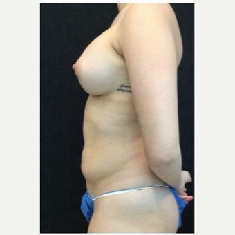 25-34 year old woman treated with Breast Augmentation after 3219314