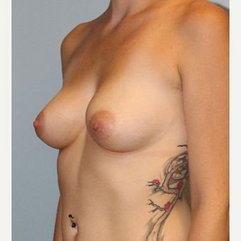 25-34 year old woman treated with Breast Implants before 3077088