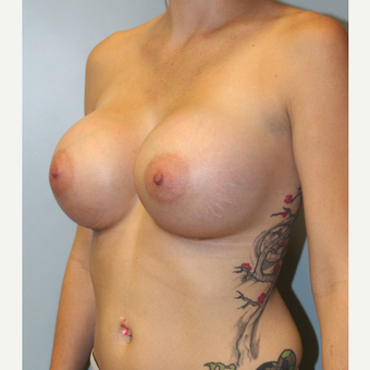 25-34 year old woman treated with Breast Implants after 3077088