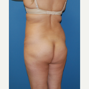 25-34 year old woman treated with Smart Lipo before 3404963