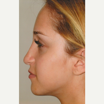 18-24 year old woman treated with Rhinoplasty before 3465209