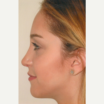 18-24 year old woman treated with Rhinoplasty after 3465209