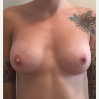 25-34 year old woman treated with Breast Augmentation after 3365754