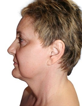53 year old woman treated with open neck lift before 2870085