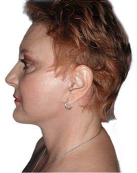 53 year old woman treated with open neck lift after 2870085