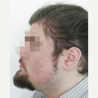 25-34 year old man treated with Beard Transplant before 3238624