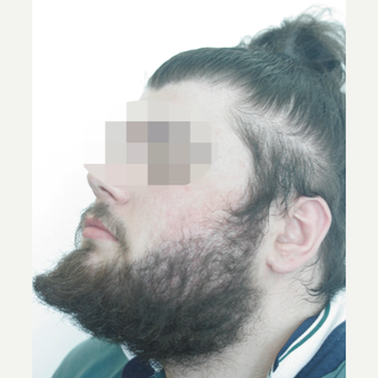 25-34 year old man treated with Beard Transplant after 3238624