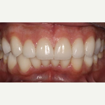 45-54 year old man treated with Dental Crown after 1866222