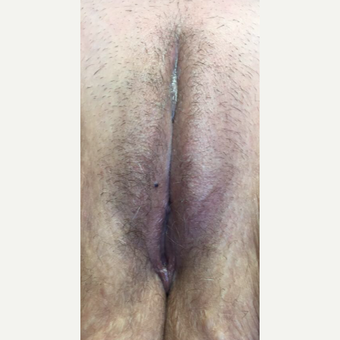 55-64 year old woman treated with Vaginal Rejuvenation after 3587520