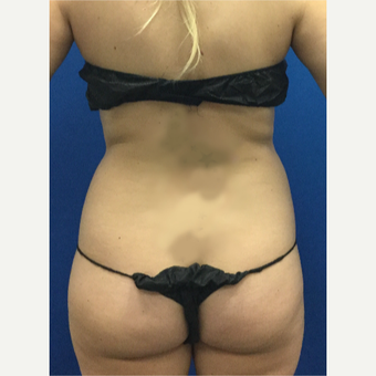 25-34 year old woman treated with Laser Liposuction before 3696914