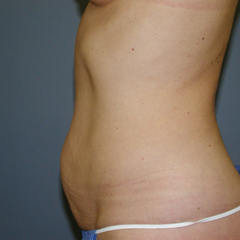 Modified tummy tuck with no liposuction before 3207242