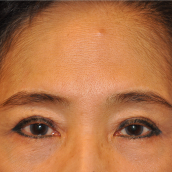 65-74 year old woman treated with Direct Brow Lift before 3075036
