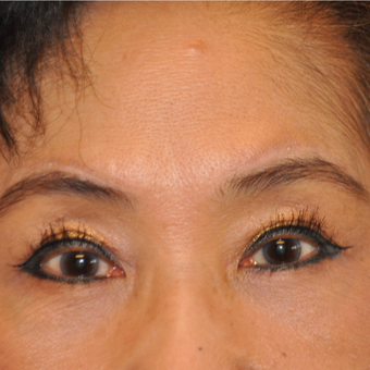 65-74 year old woman treated with Direct Brow Lift after 3075036