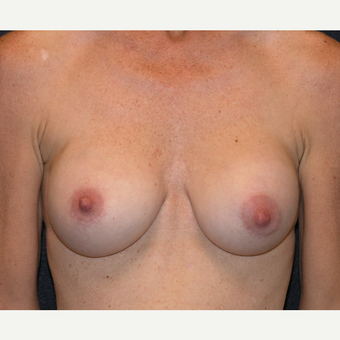 35-44 year old woman treated with Breast Implants before 3454957