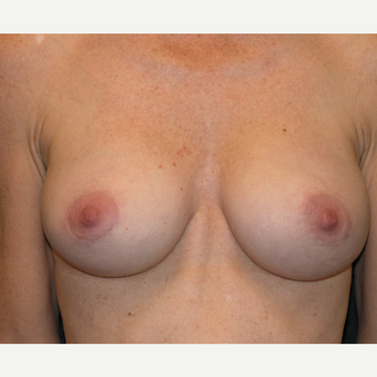 35-44 year old woman treated with Breast Implants after 3454957