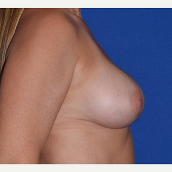 45-54 year old woman treated with Breast Augmentation with Ideal Saline Breast Implant after 3105078