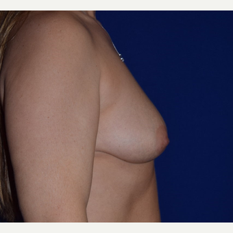 45-54 year old woman treated with Breast Augmentation with Ideal Saline Breast Implant before 3105078