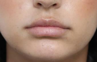 18-24 year old woman treated with Lip Augmentation after 3076190