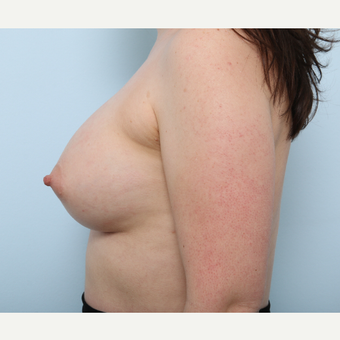 Breast Augmentation after 3345421