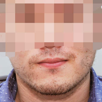 25-34 year old man treated with ARTAS Robotic Hair Transplant before 3300395
