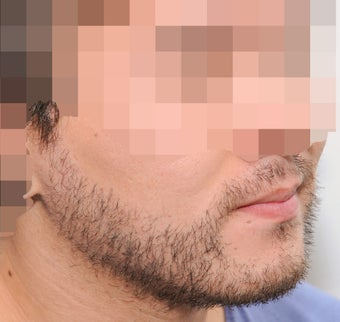 25-34 year old man treated with ARTAS Robotic Hair Transplant 3300395
