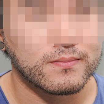 25-34 year old man treated with ARTAS Robotic Hair Transplant after 3300395