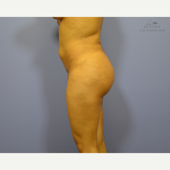 18-24 year old woman treated with Butt Augmentation after 3386565