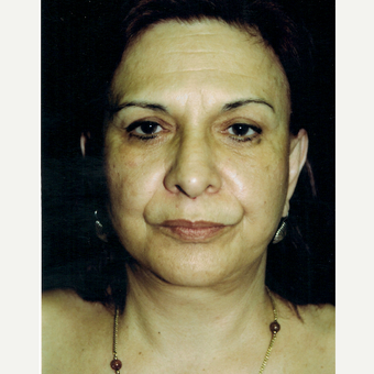 55-64 year old woman treated with Facelift after 3271975