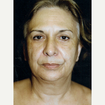 55-64 year old woman treated with Facelift before 3271975