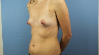 25-34 year old woman treated with Mommy Makeover 2656037