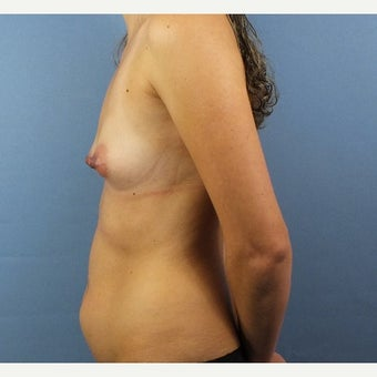 25-34 year old woman treated with Mommy Makeover before 2656037
