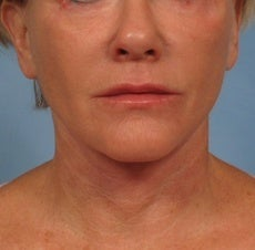 62 year old female facelift after 1018174