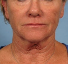62 year old female facelift before 1018174