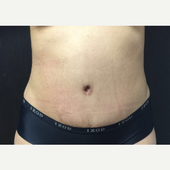25-34 year old woman treated with Tummy Tuck after 3400494